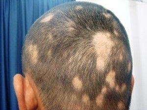 Biotin Deficiency - Hair Loss Vitamins