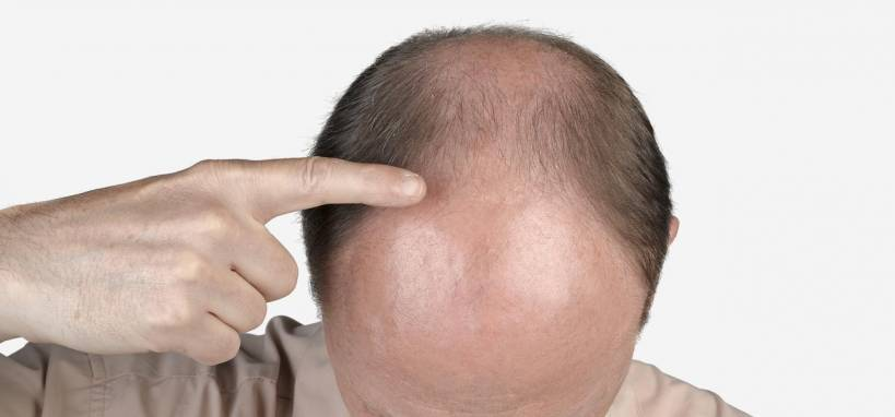 Frontal Baldness Treatment