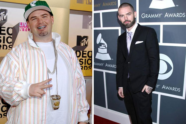 Gastric Surgery Saves Life Of Rapper Paul Wall
