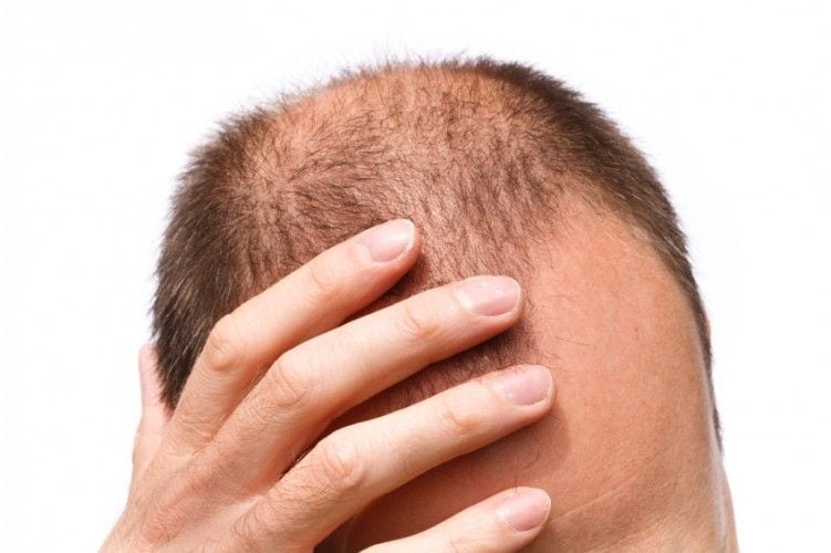What Causes Hair Loss? Hair Loss Treatments!