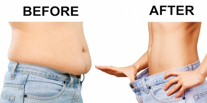 How do you lose belly fat without liposuction?