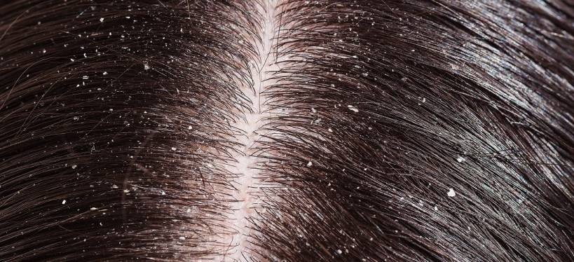 5 Things Everyone Should Know About Dandruff