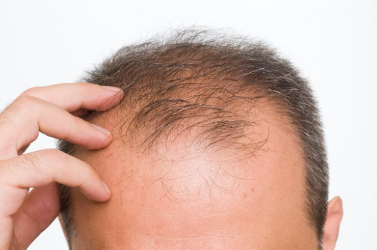 Provillus and Hair Loss