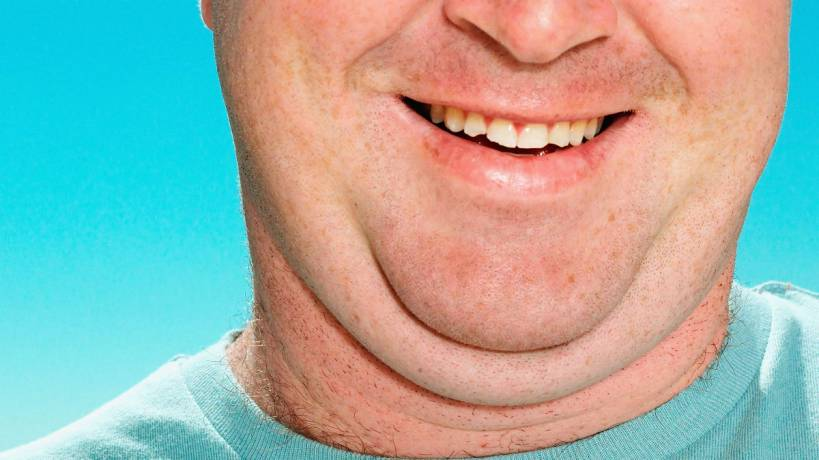 Remove Double Chin – Fat under Chin