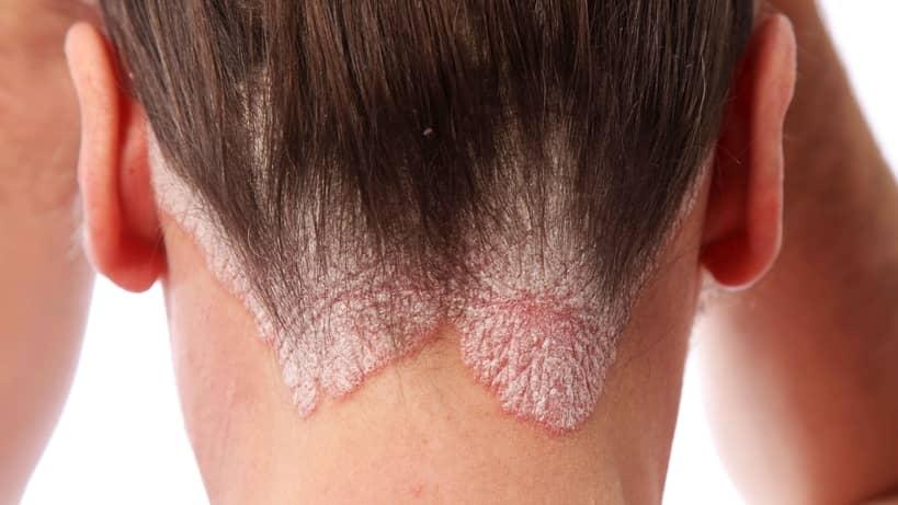 Psoriasis Vulgaris - Psoriasis Treatment with Dermasis
